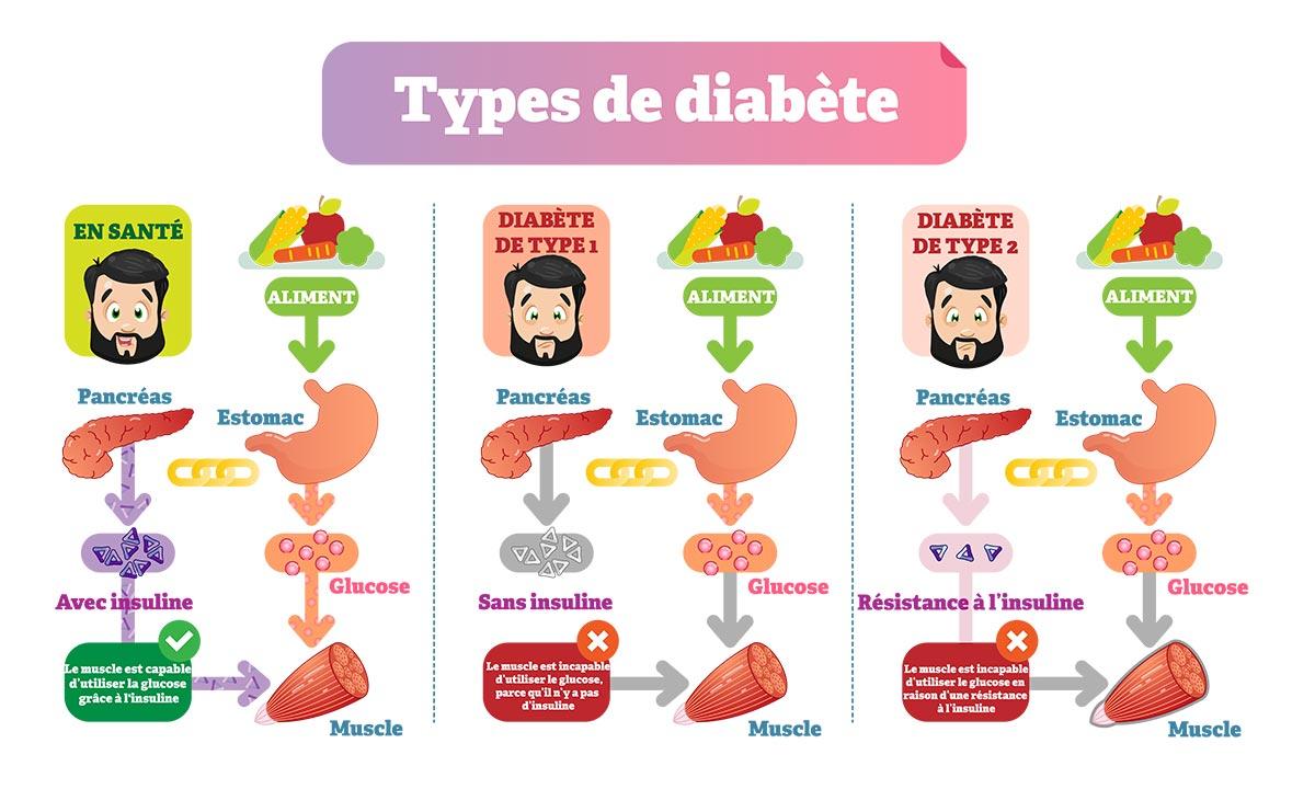 L'image nous montre l'effet des différents types de diabète sur votre corps